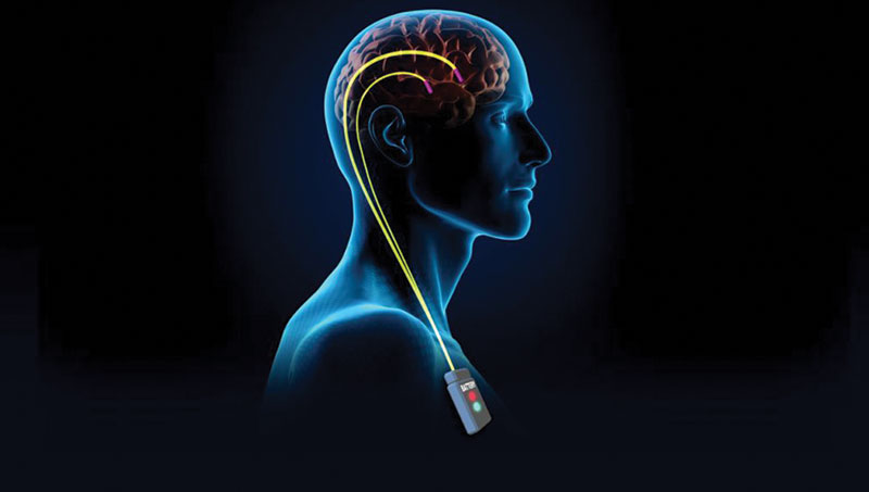Parkinson Hastalığında Derin Beyin Stimülasyonu (DBS)