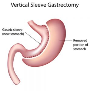 Gastrointestinal surgery