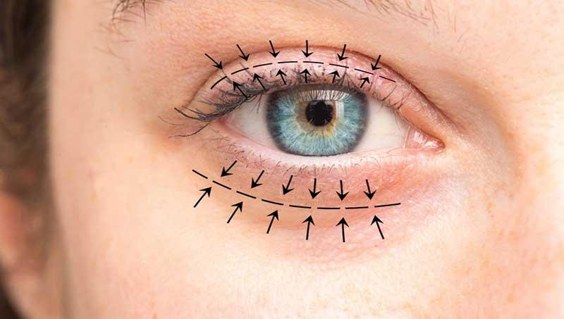göz kapağı estetiği nasıl yapılır