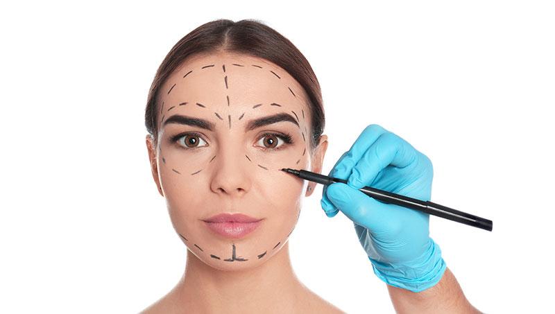 Rhytidectomy ( Yüz Germe ) işlemi nedir ve kimlere uygulanır?